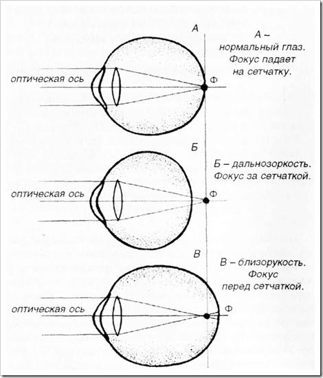 Упражнения для глаз при дальнозоркости у детей